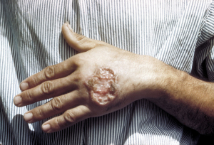 1024px-Skin_ulcer_due_to_leishmaniasis,_hand_of_Central_American_adult_3MG0037_lores